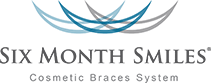 Six Months Smiles Cosmetic Braces System