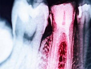X-ray of teeth and root canals