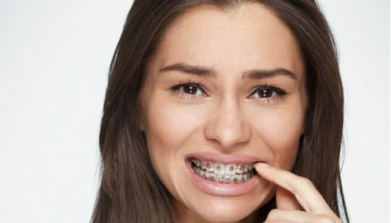 girl grimaces as she picks food out of her metal braces