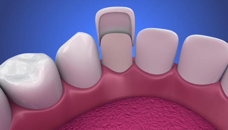 Artistic rendering of porcelain veneers placed over teeth