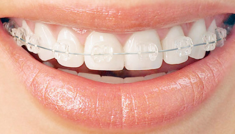 six month smiles clear braces in Baton Rouge