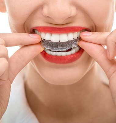 a woman holding clear aligners